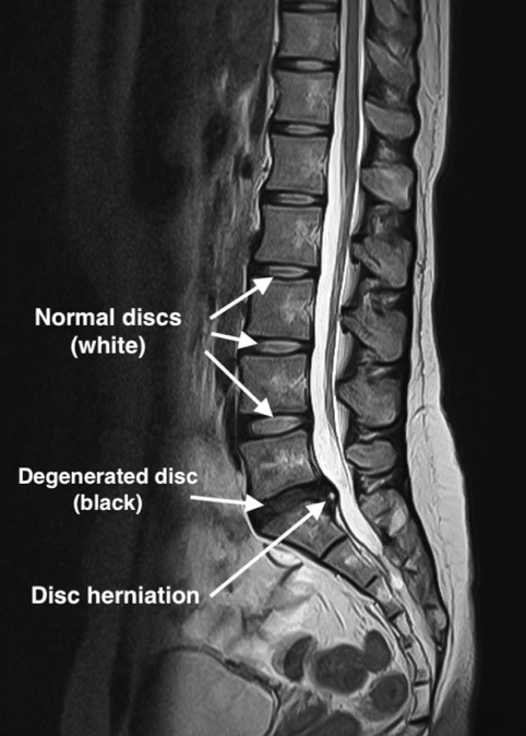 Lumbar disc herniation MRI showing the difference between normal and degenerated discs and herniation itself