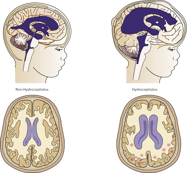 Schematic illustration of normal and hydrocephalic brain